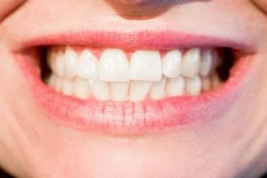 before-correction-refer-to-the-taipei-invisalign-experience-dcard-article